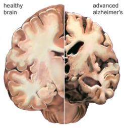 Bơ Vơ Phận Già - Vui Sống với Tuổi Già  Brain-alzheimer